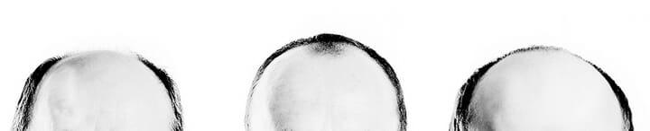 caffeine and baldness