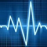 Caffeine and Heart Arrhythmias (Irregular Heartbeat)