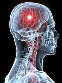 روش جلوگیری از سکته مغزی